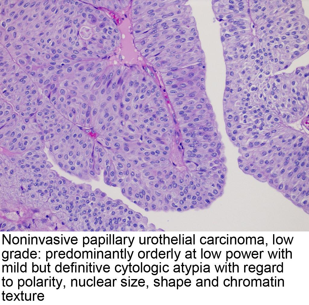 papillary urothelial carcinoma types)