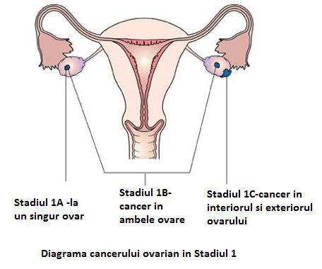 Cum e să fii diagnosticat cu cancer la 19 ani, în România