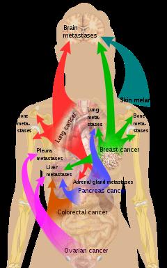 cancer que es metastasis)