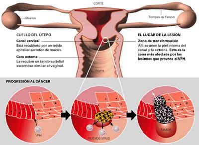 tratamiento virus del papiloma humano consecuencias)