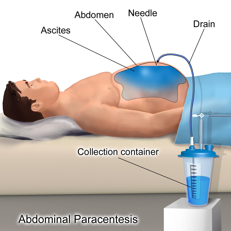 ICD C Tumora maligna colonul sigmoid — Lista Medicamentelor Mediately