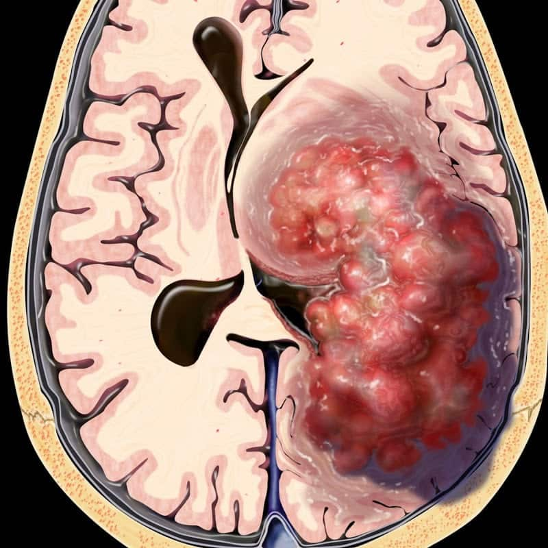 cancer cerebral sintomas finais