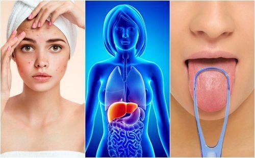 15 simptome care indică acumularea de toxine în ficat