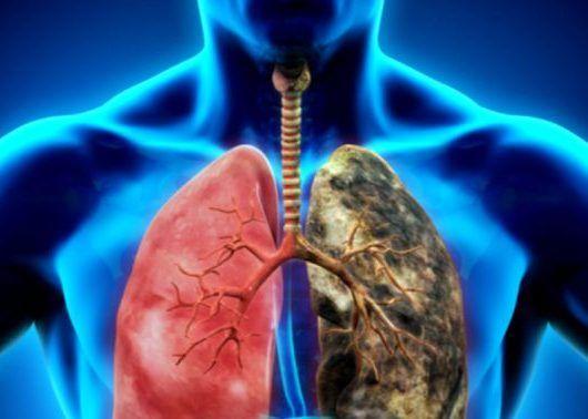 cancer pulmonar a)