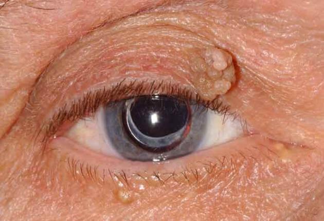 papilloma in eyes)
