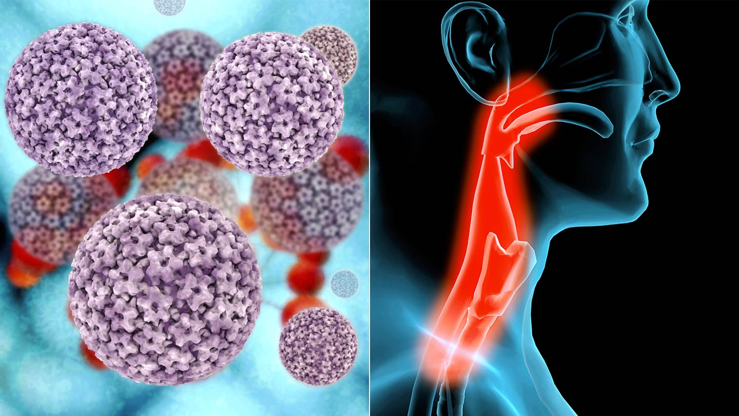 hpv virus turns into cancer