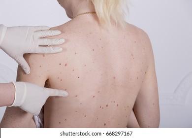 papillomas skin)