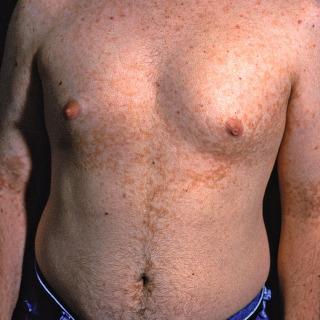 papillomatosis of the skin)