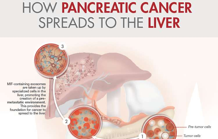 pancreatic cancer with liver mets)