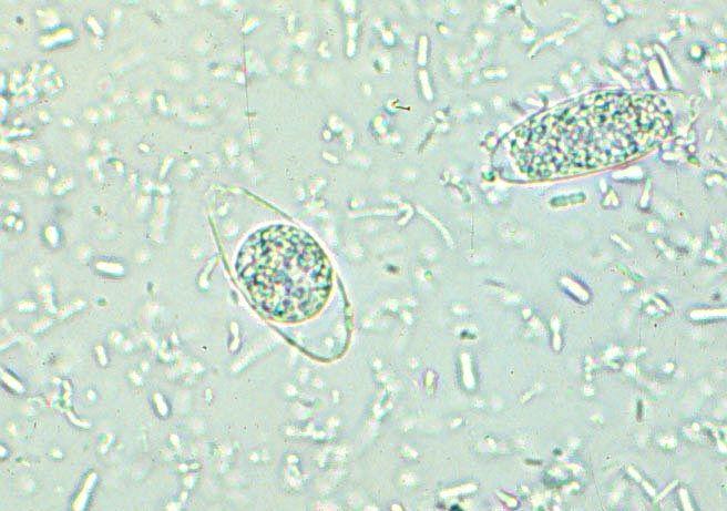 analize specifice paraziti