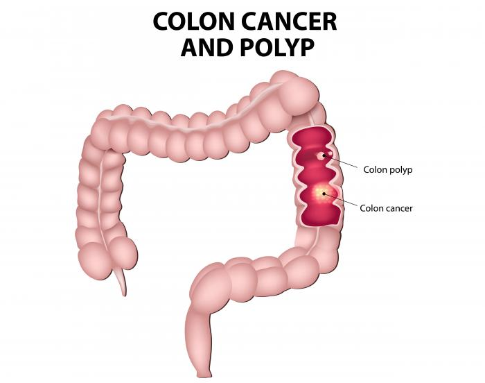 cancer colorectal definition)