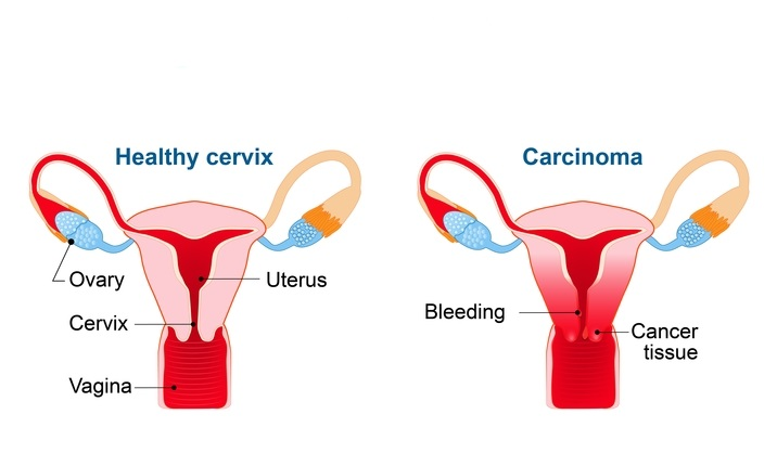 how does human papillomavirus cause cervical cancer