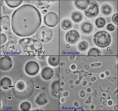parazit giardia lamblia)