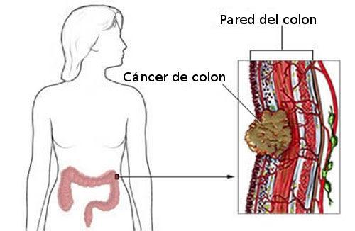 cancer de colon en jovenes sintomas)