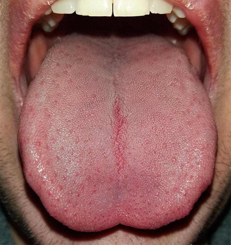 papillae under tongue