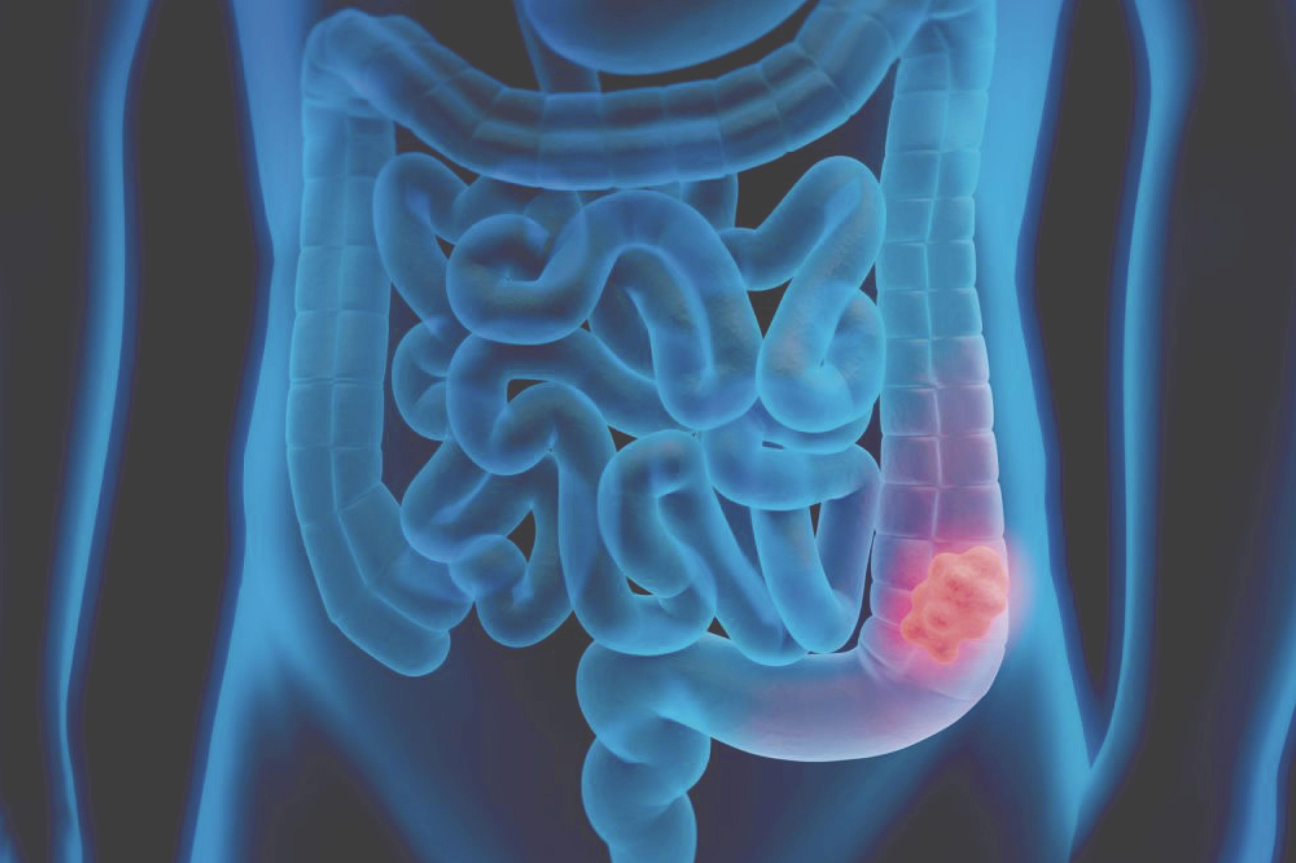 cancer colon rectal)