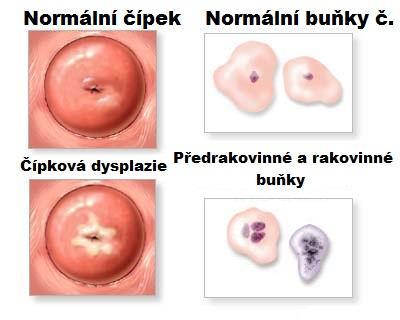 papillomavirus priznaky)