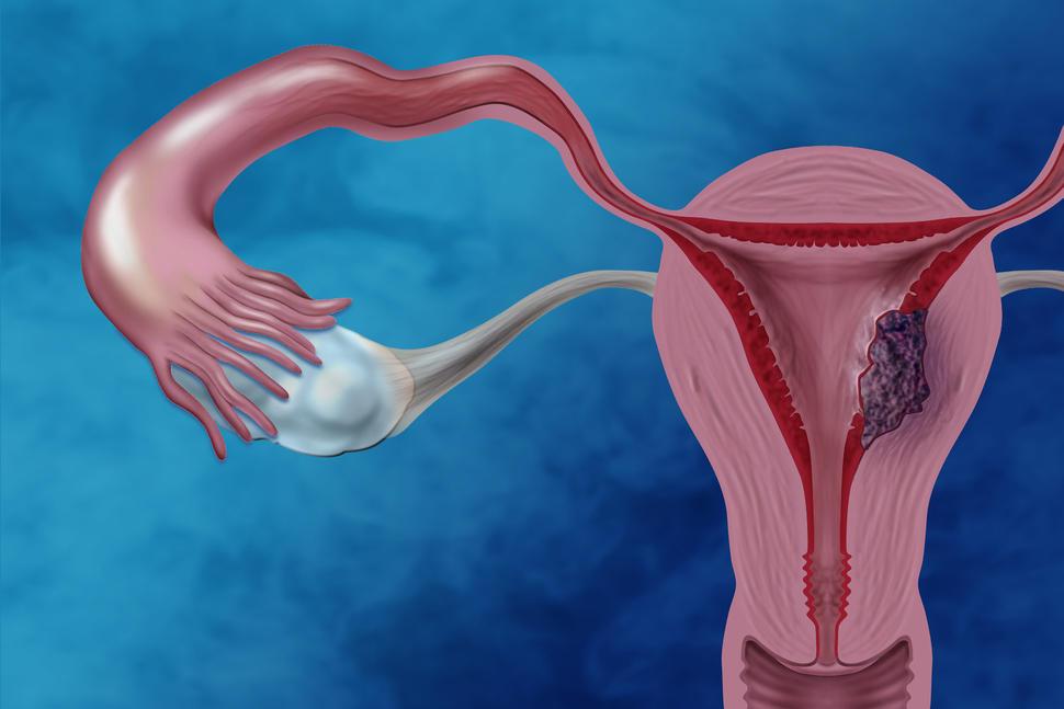 uterine cancer diarrhea)