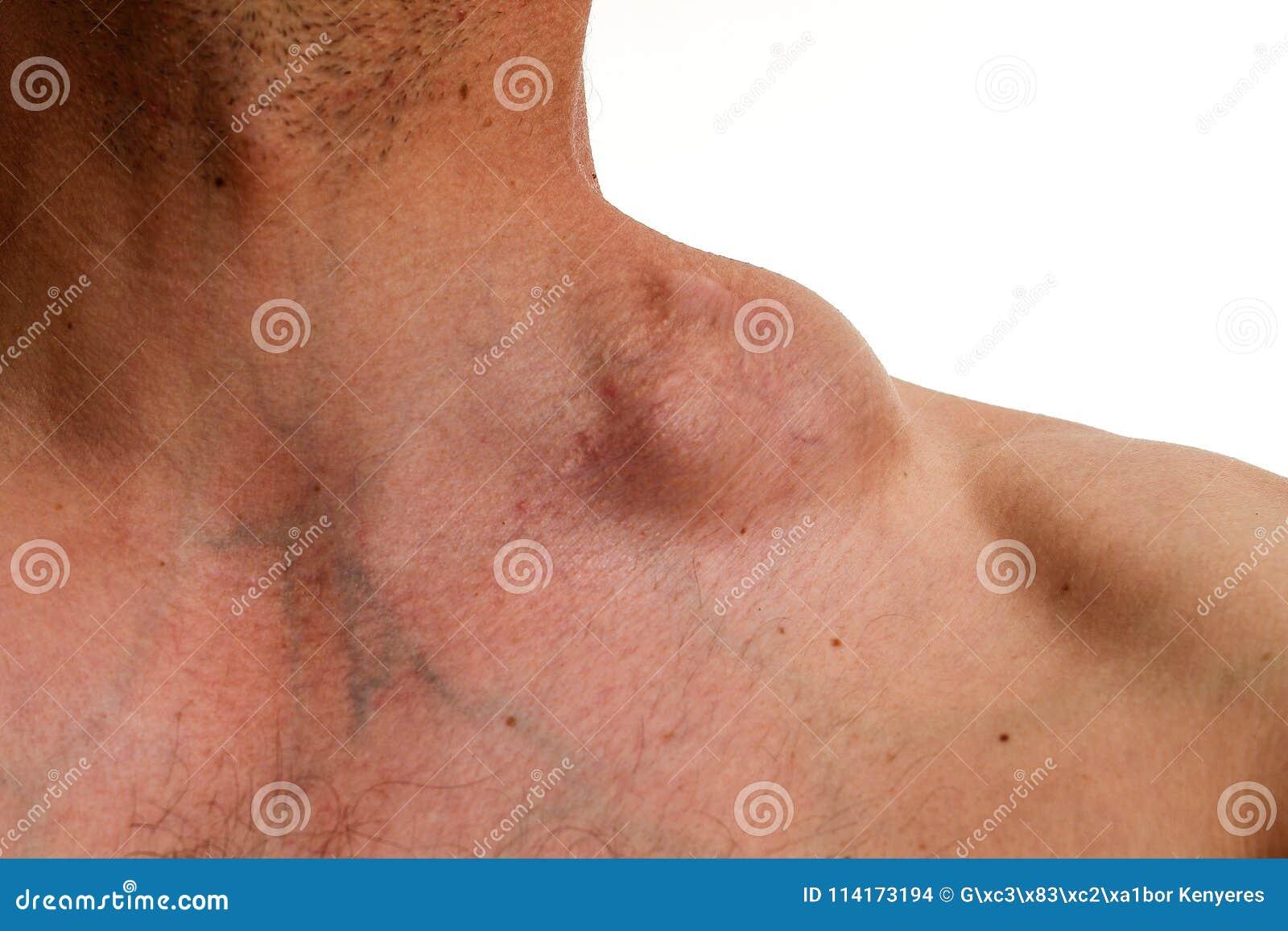 cancer hodgkinien