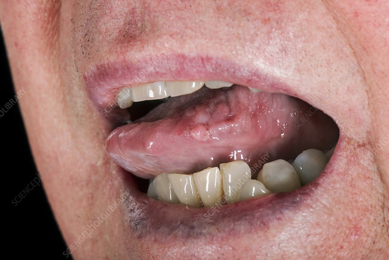 papilloma of tongue pictures