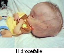 toxoplasmoza la copii)