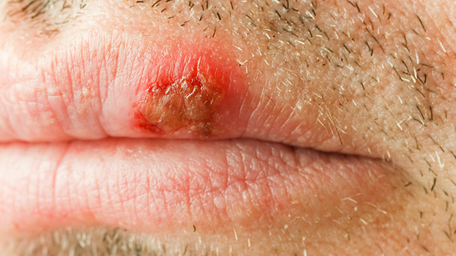 hpv mouth sores)