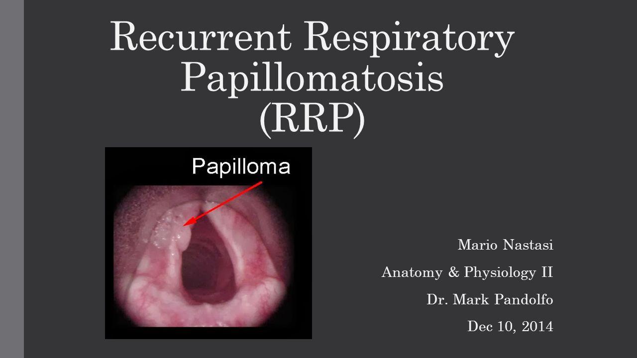 recurrent laryngeal papillomatosis treatment