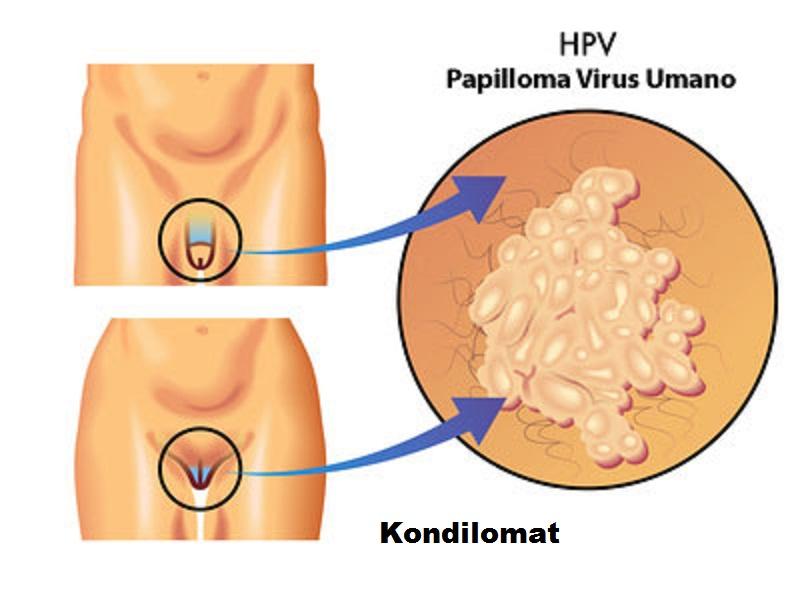 human papillomavirus pronounce papillomavirus miss frottis