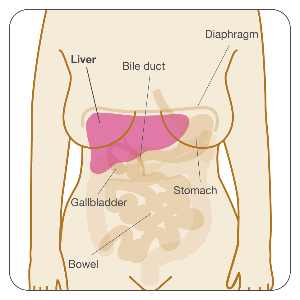 metastatic cancer of the liver treatment)