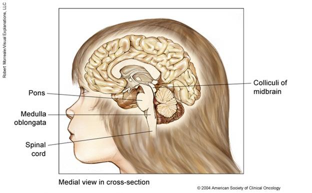 Tumoare maligna cerebrala