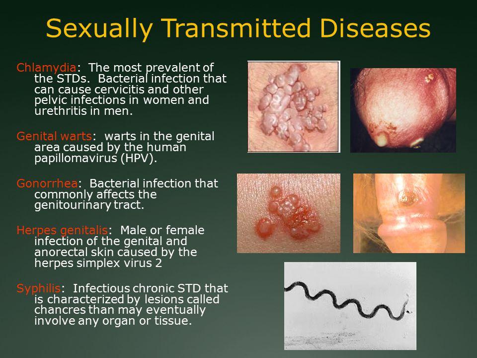 human papillomavirus urethritis