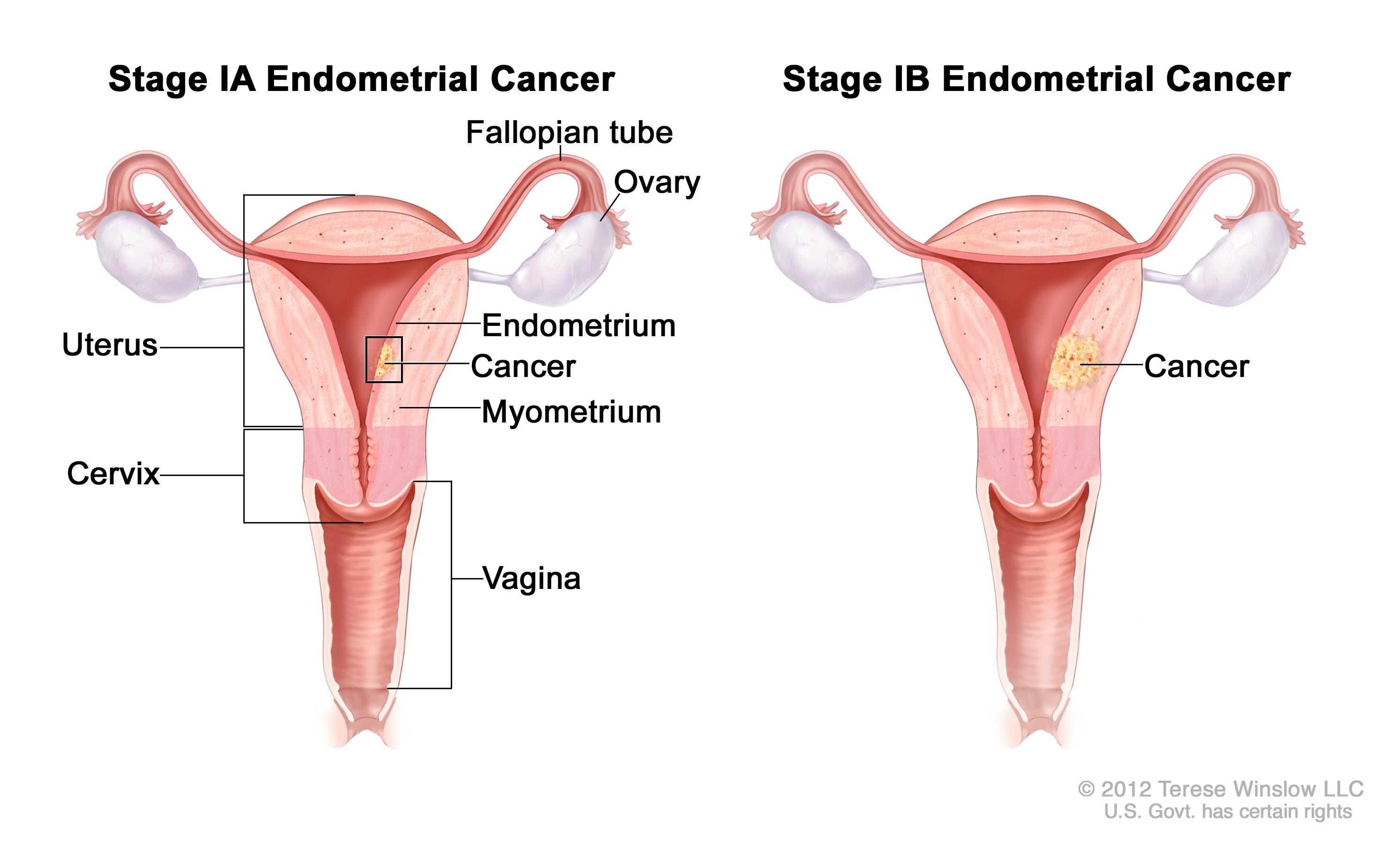 cancer endometrial metastasis)