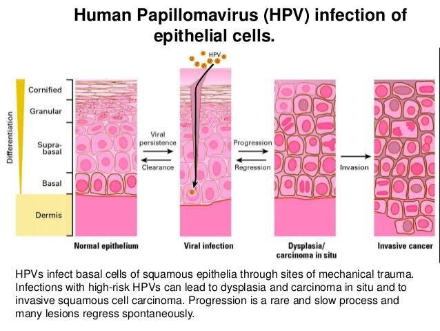 hpv squamous epithelial cells