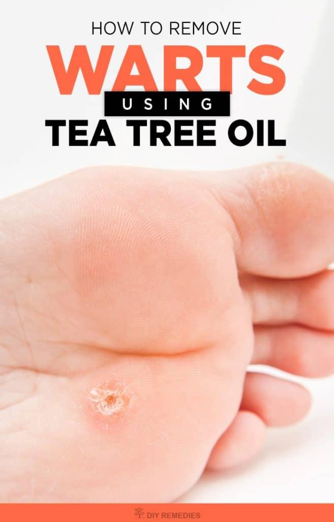 tea tree oil e papilloma virus