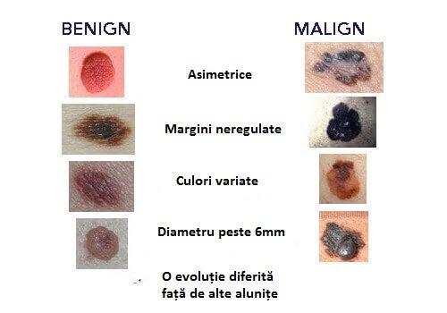 Cancerul de piele: cele mai frecvente tipuri
