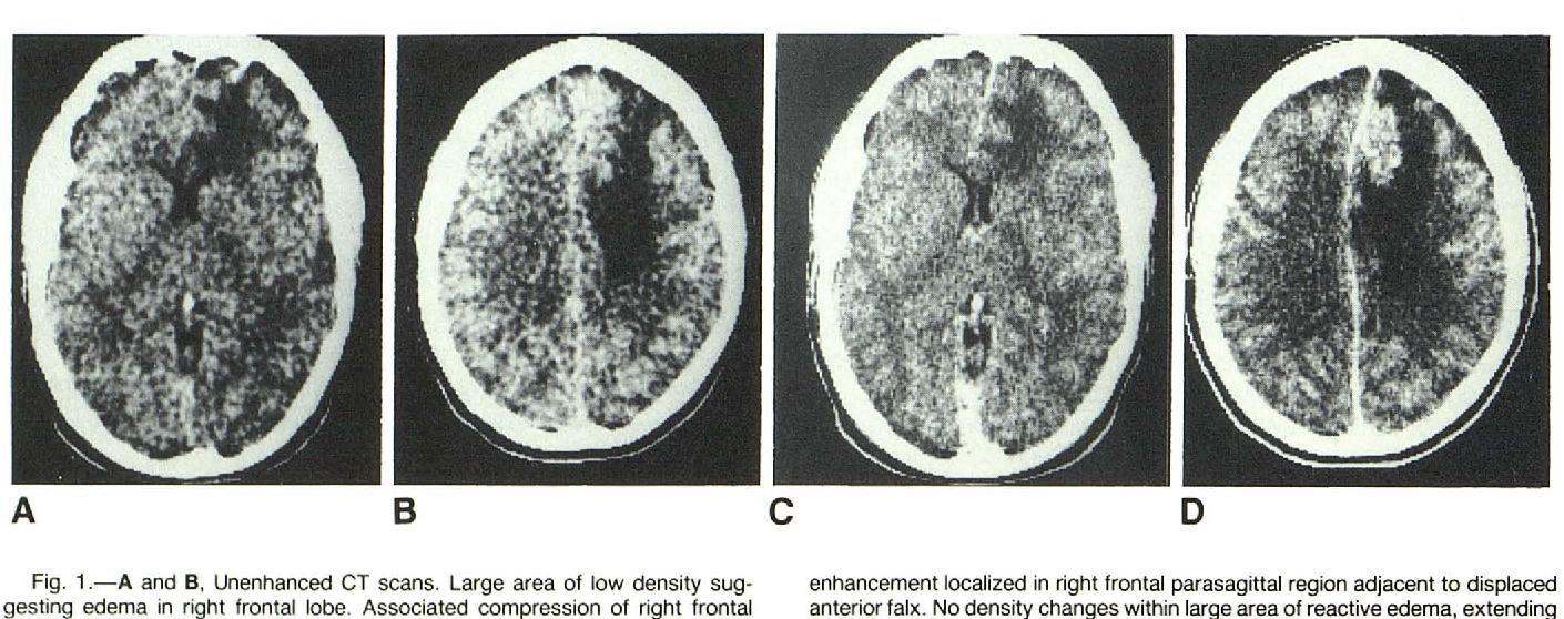 schistosomiasis brain