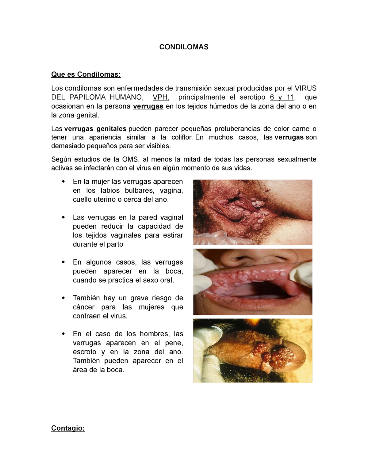 virus del papiloma en zona genital)