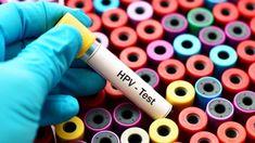 hpv virus que es)