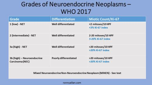 neuroendocrine cancer nec