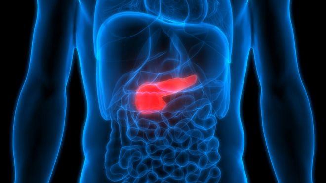 cancer pancreas que significa