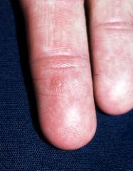 hpv type hand warts)