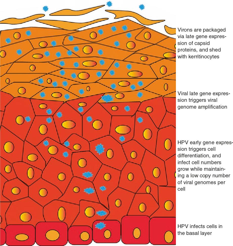 recurrent respiratory papillomatosis life cycle)