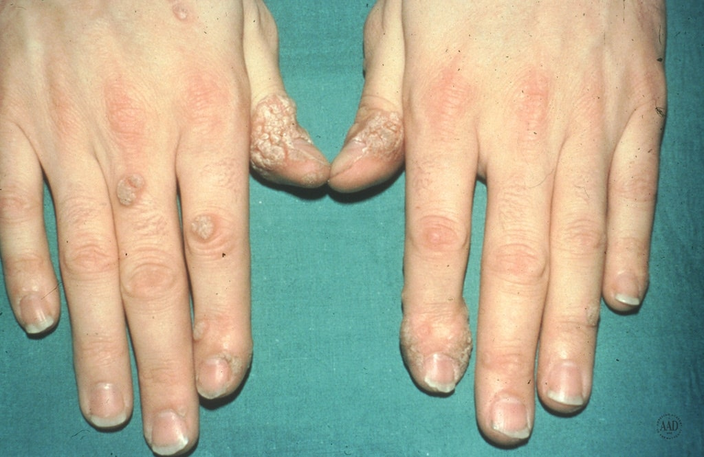 clear warts on hands pictures)