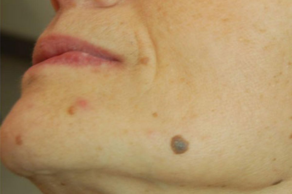 dopo laser papilloma virus)