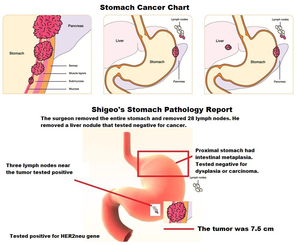 cancerul pulmonar la ce varsta apare cancer peritoneal estadio 4