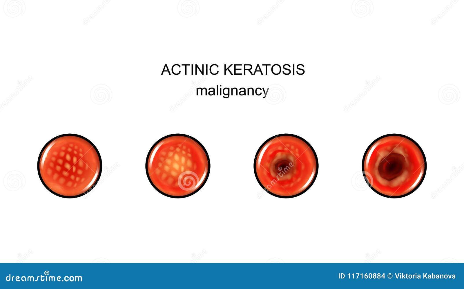 Benign sau malign - care sunt diferentele | kd-group.ro