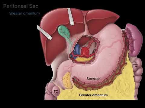 cancer membrana peritoneal)