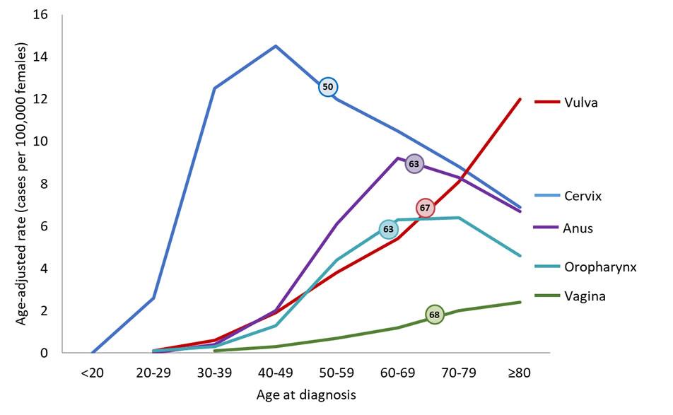 cervical cancer age group