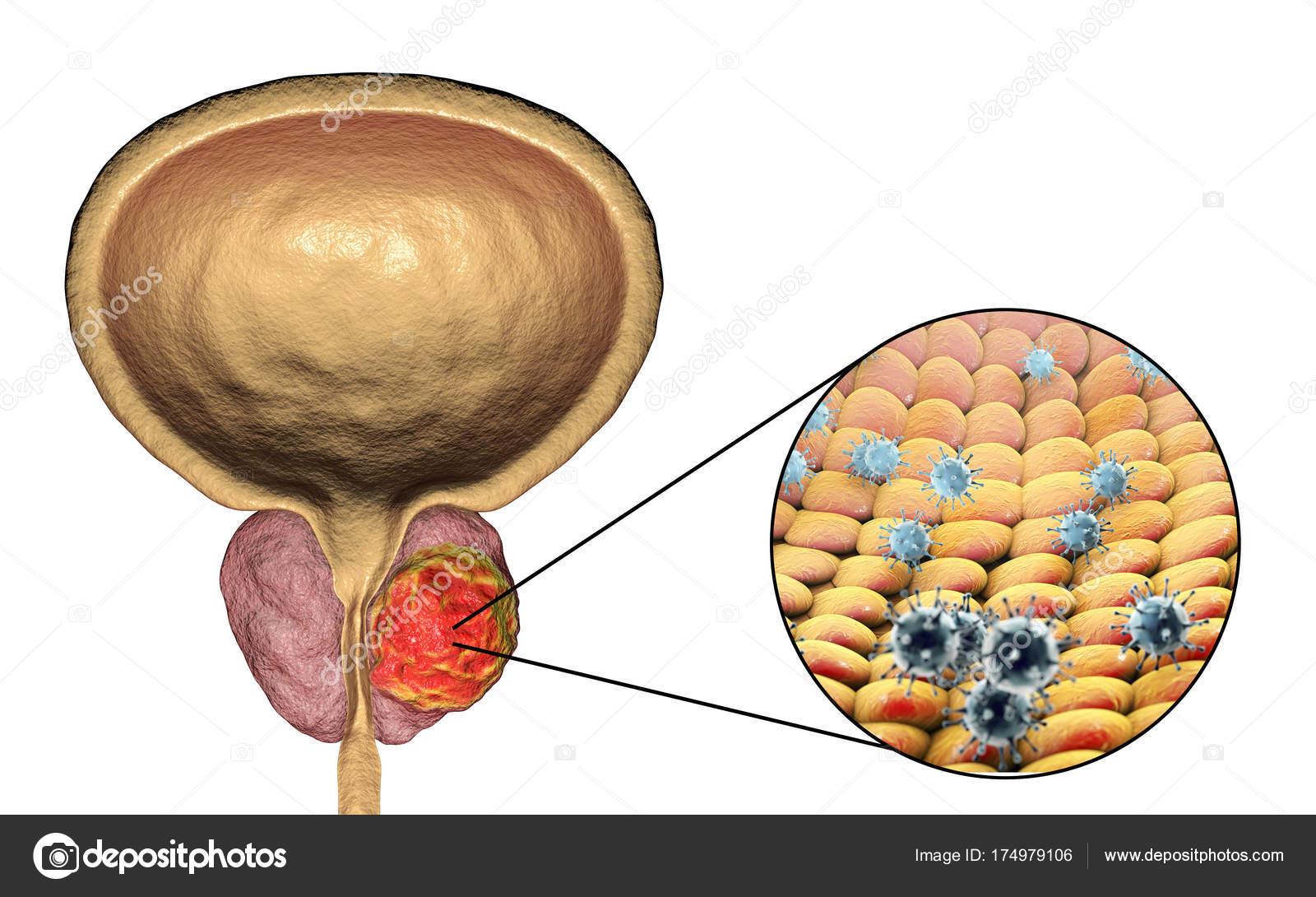 cancer de prostata etiologia