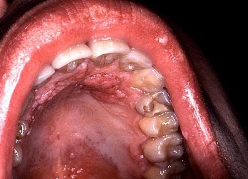 papillomavirus tongue cancer)